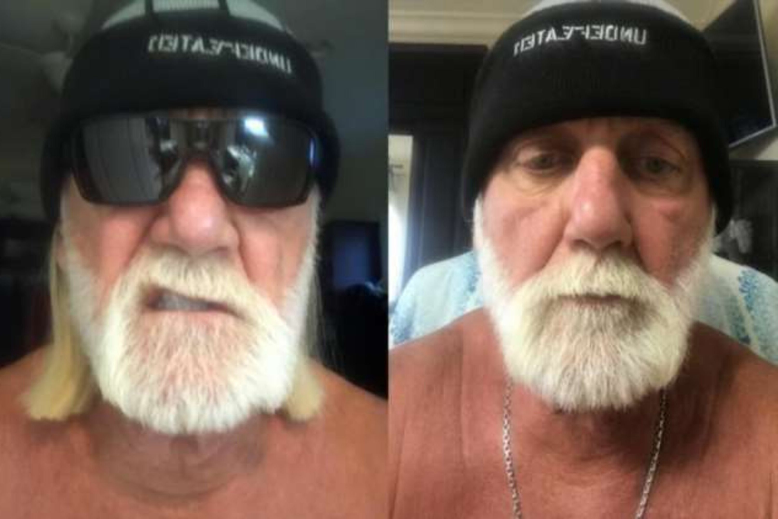 A full beard like Hulk Hogan has.